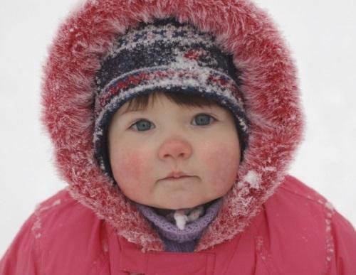 Pranzo Freddo Per Bambini : Come riconoscere orticaria freddo bambini