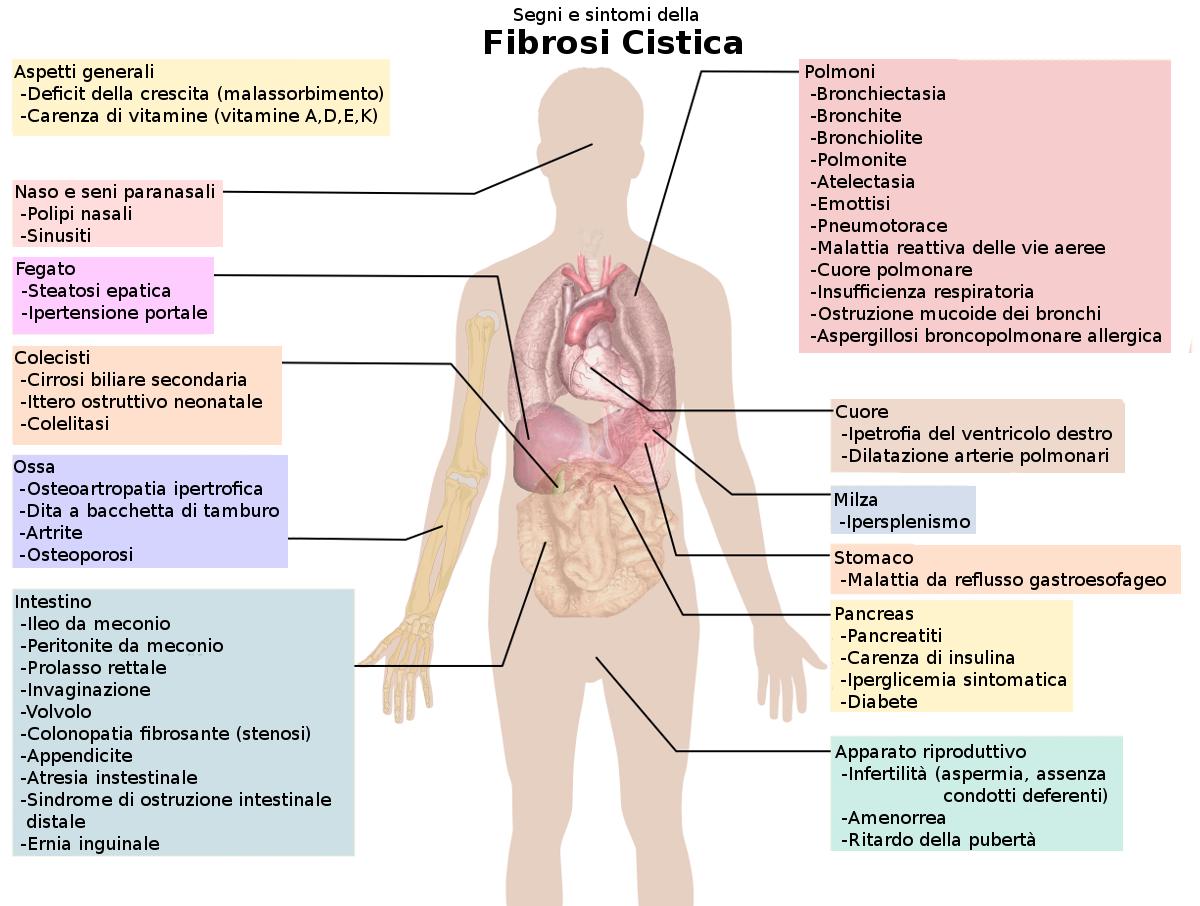 fibrosi cistica